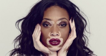 Winnie-Harlow-15-hottest-models-who-live-with-chronic-diseases-and-disabilities-With-Pictures